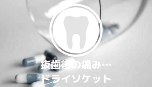 【体験談】抜歯後の耐えがたい痛み…ドライソケットでした。